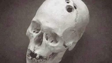 صورة جراحية معقدة في الرأس قبل آلاف السنين فى جنوب العراق