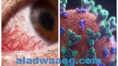 صورة اللجنة العليا للفيروسات: لا يوجد إصابات بالفطر الأسود في مصر