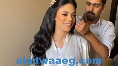 صورة محمود جيوشي: الرستا تسبب تساقط الشعر