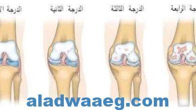 صورة خشونة الركبة.،،